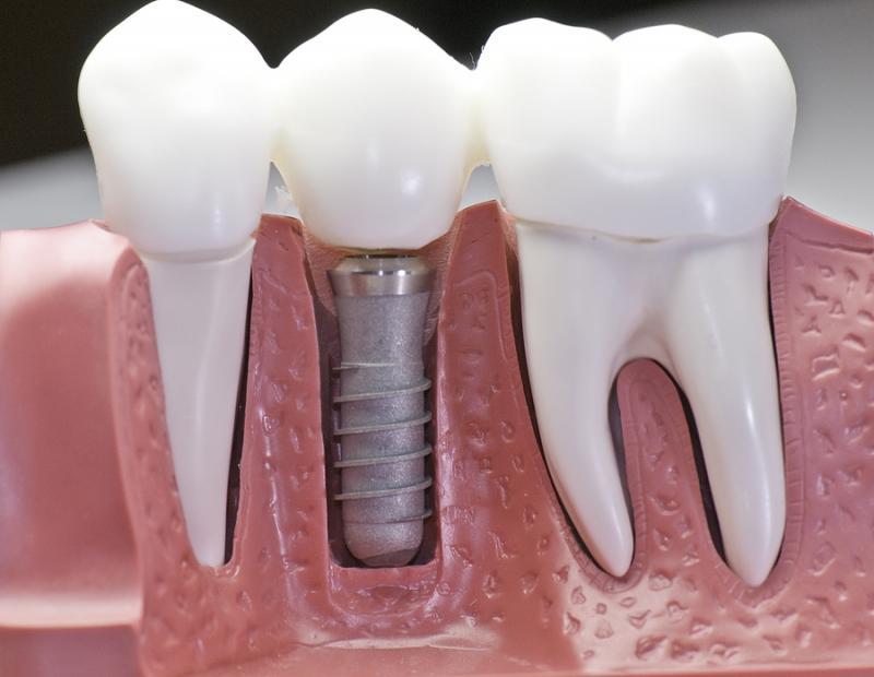 зубной имплант фото