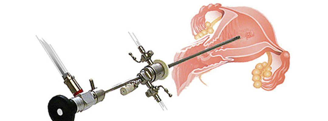 гистерорезектоскопия что это такое в гинекологии