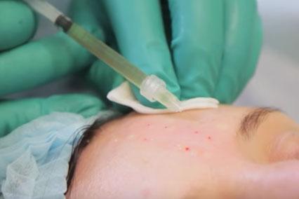 Как делают инъекции при плазмолифтинге