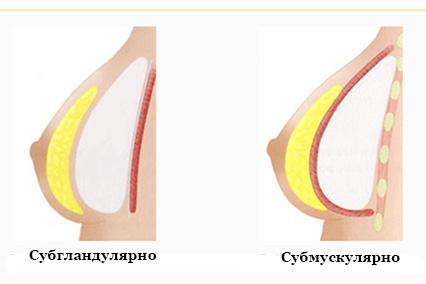 Как располагаются импланты в молочных железах