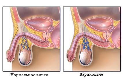 Варикоцеле как причина бесплодия